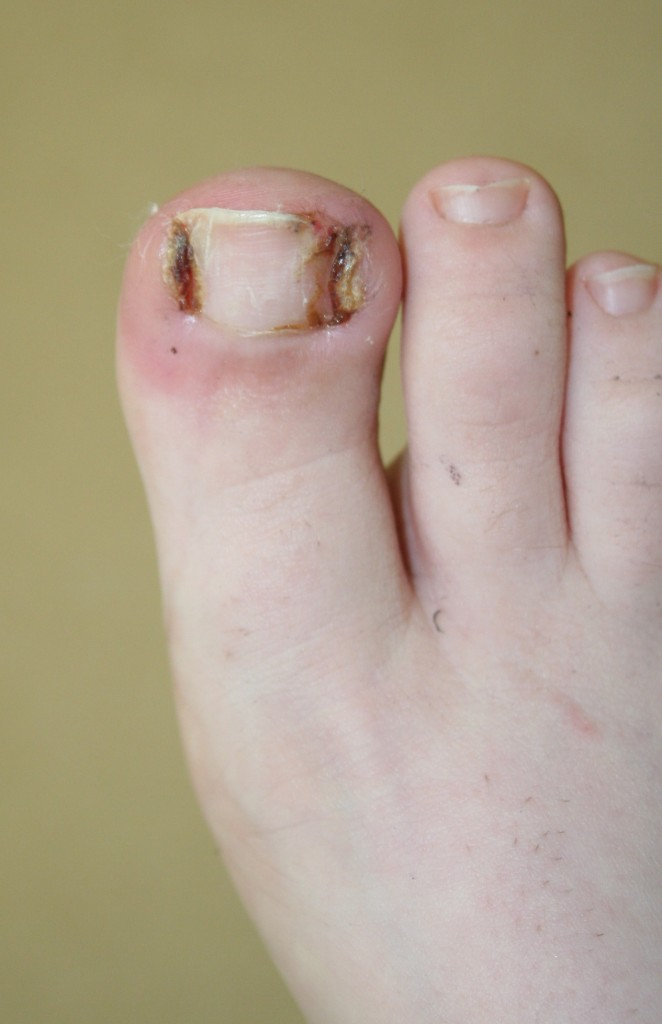 Ingrown Toenail Surgery Buderim Podiatry